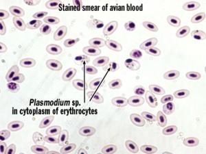 Cellule infectée par le Plasmodium