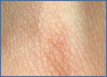 Les soins de la peau en fonction de votre âge