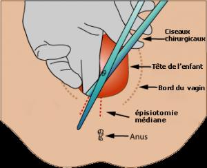 l'épisiotomie en images