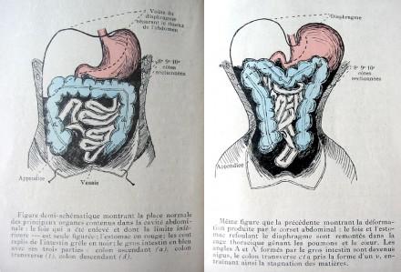Déformation des organes par le corset