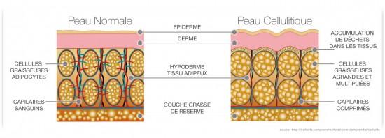 cellulite definition