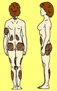 cellulite localisation femme