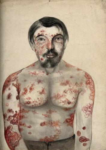 IST syphilis symptômes
