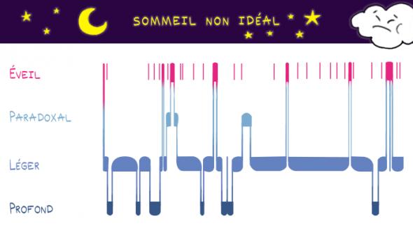 Graphique d'un sommeil non idéal