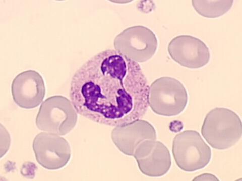 leucocyte neutrophile