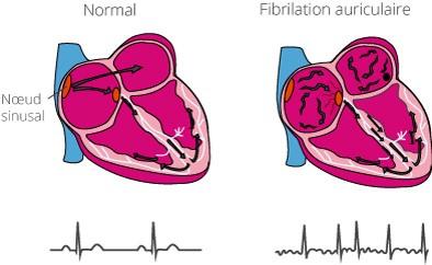 Aruthmie auriculaire : fibrillation auriculaire