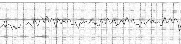 Arythmie ventriculaire : fibrillation ventriculaire