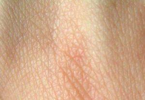 la peau se mouille quand il fait chaud